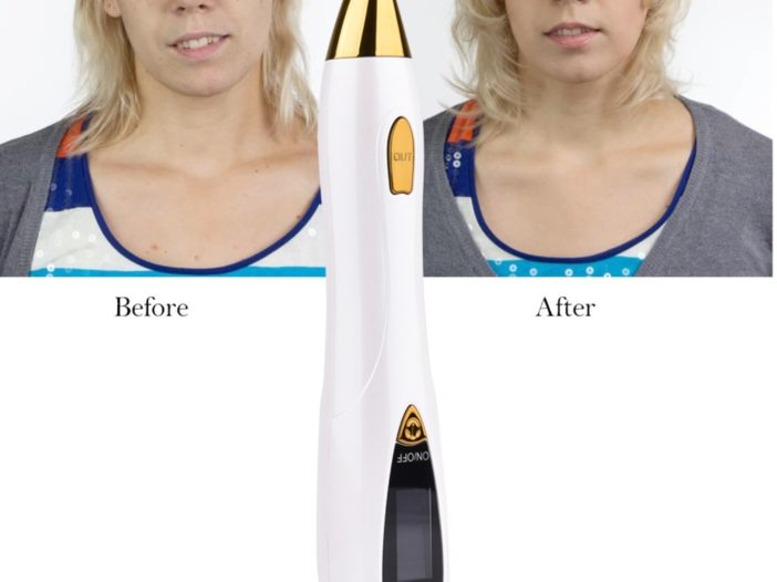 Laser Mole Tattoo Freckle remover Discount Deal
